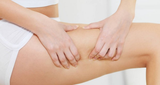 Mulher Apertando Celulites