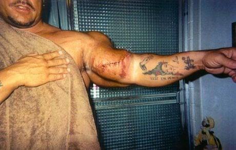 Gregg com cicatriz