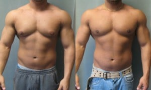 Gynecomastia in a Male Bodybuilder
