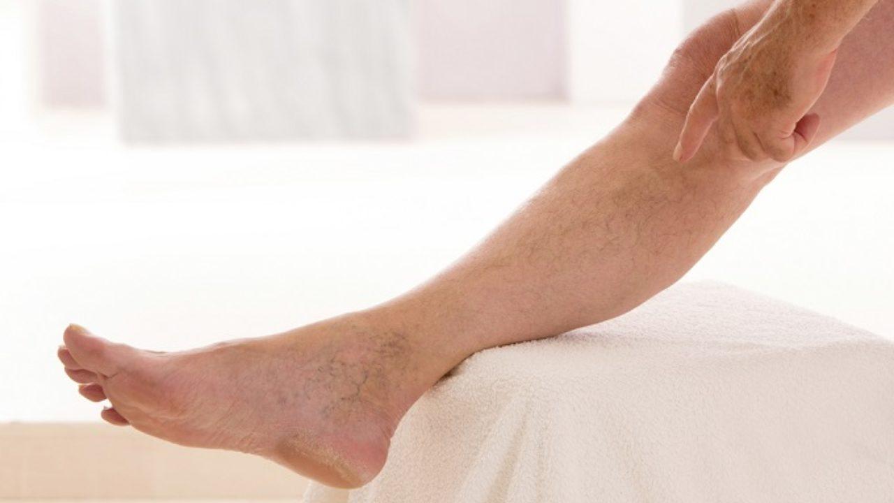 como clarear connective tissue pelos das pernas naturalmente