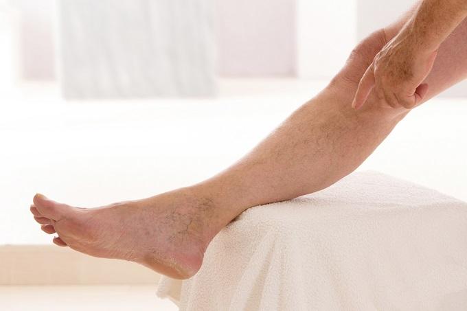 Dor na frente da perna abaixo do joelho ao caminhar