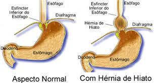 Hernia-de-hiato-antes-e-depois1