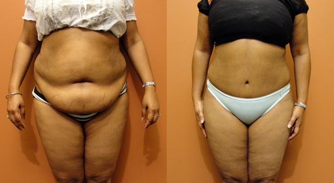 Cirurgia para retirada de pele da barriga