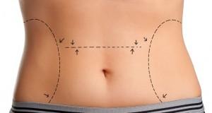 Marcas para abdominoplastia