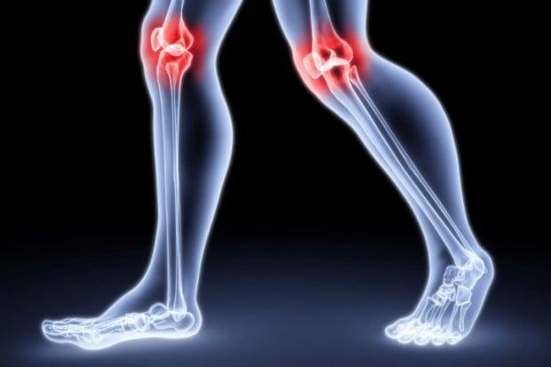 Como aliviar a dor da artrose