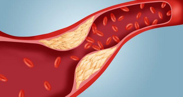 Parede de colesterol