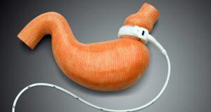 Bariátrica