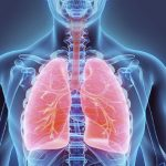 Água no Pulmão - Sintomas, Causas e Tratamento