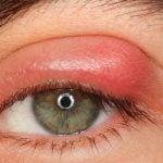 Como Tratar o Terçol no Olho? É Contagioso? Causas, Sintomas e O Que Fazer