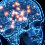 Colesterol no cérebro