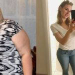 Como Ela Conseguiu Perder Quase 90 Kg que Doença Hormonal a Fez Ganhar