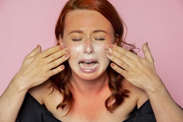mulher com rosto queimado de sol