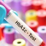 Exame HbA1c - O Que é, Resultado Normal e Valores de Referência