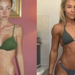 Modelo Que Sofria de Anorexia e Chegou a Pesar 26 Kg Conta Como se Recuperou