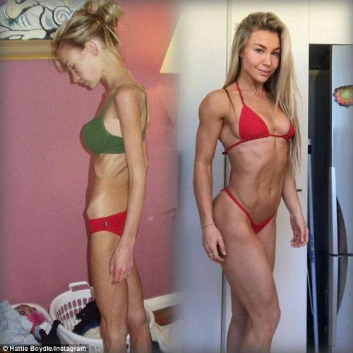 Modelo que sufría de anorexia y pesaba 26 kg cuenta cómo se recuperó 4