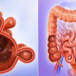 Diverticulite Aguda - O Que é, Sintomas, Dieta e Tratamento