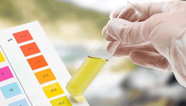 Exame de cetonas na urina