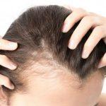 10 Causas da Calvície Feminina e Melhor Tratamento