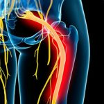 Dor no Nervo Ciático - O Que é, Sintomas e Tratamento