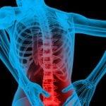 5 Remédios para Dor na Coluna Mais Usados