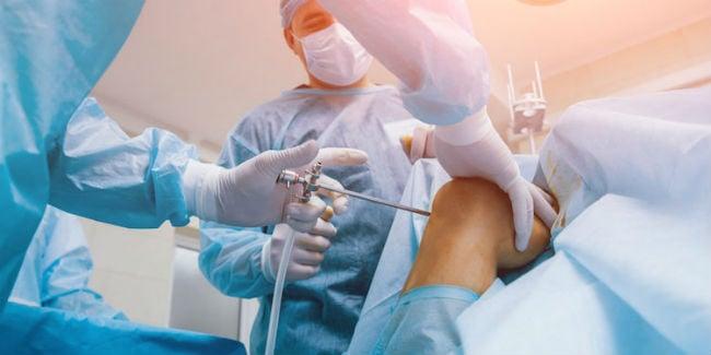 Artroscopia de joelho