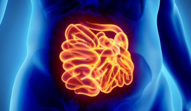 Inflamação no intestino