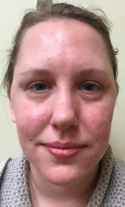 cicatrizdeacne_microagulhamento Cicatriz de Acne - Qual é a Melhor Forma de Tirar?