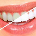 Clareamento Dental Caseiro - 6 Mais Famosos Tipos e Cuidados
