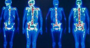 Exame de cintilografia óssea
