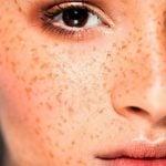 Hipercromia (Manchas na Pele) - O Que é e Como Tratar
