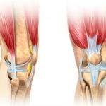 O Que São Ligamentos - Tipos, Lesões e Cuidados