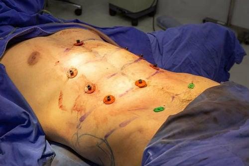 Img-1 Cirurgia Estética Polêmica para Abdômen Definido Surge na Tailândia e Choca