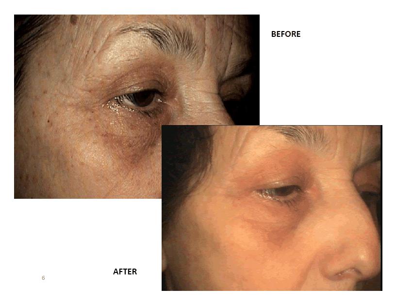 mesoterapia1 Mesoterapia - O Que é, Antes e Depois, Como Funciona, Resultados, Cuidados e Dicas