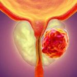 Como Prevenir o Câncer de Próstata