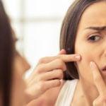 Como Tirar Espinha Interna Inflamada - Cuidados e Dicas