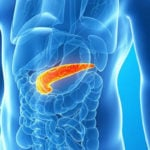 Dieta para Pancreatite - Alimentos e Dicas