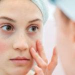 10 Principais Sintomas do Lúpus - O Que é e Sinais Importantes
