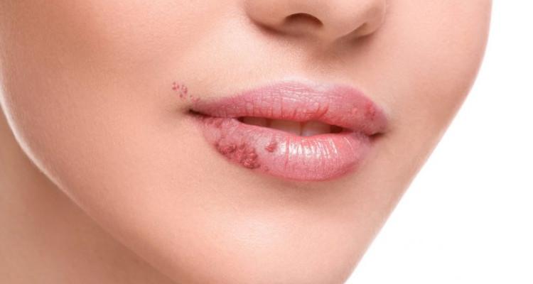 herpes-simples