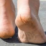 Rachadura nos Pés - Causas, Remédios e Tipos de Tratamento Caseiro