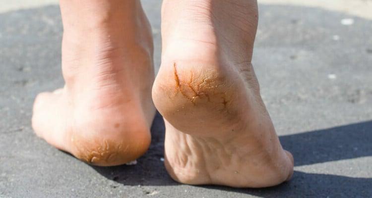 Conheça as causas da rachadura nos pés