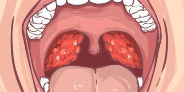 5 Remédios para Amigdalite Mais Usados