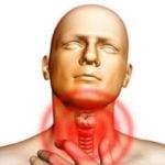 Sintomas de Hipertireoidismo
