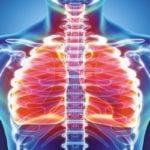 11 Principais Sintomas de Bronquite