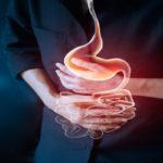 Doença de Crohn - O Que é, Sintomas, Dieta e Como Tratar