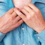 Sudorese - O Que é, Sintomas, Causas e Tratamentos
