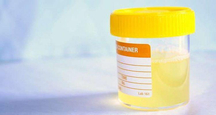 3-1 Urina com Cheiro Forte - O Que Pode Ser e O Que Fazer