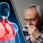Bronquite Crônica - O Que é, Sintomas e Tratamento
