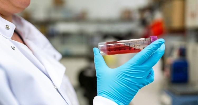 Plasma coronavírus