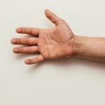 Neuropatia mãos