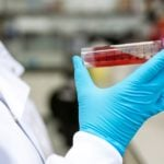 Índice de saturação da Transferrina – valores de referência e o que fazer